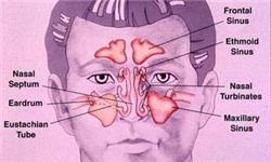 اندازه و فرم نامناسب شاخک بینی عامل درد سینوزیت است