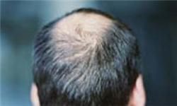 کاهش سن ریزش مو/ دلایلی که سبب کچلی میشود