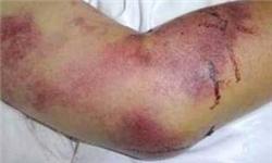 اطلاعیه دامپزشکی استان بوشهر درباره تب کریمه کنگو