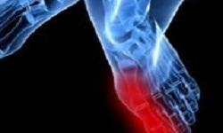 درد انگشتان پا؛ علل و علائم