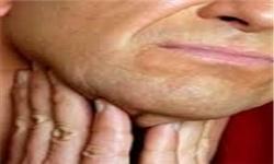 ۸۰ درصد افراد مبتلا به سرطان حنجره زمینه مصرف دخانیات دارند