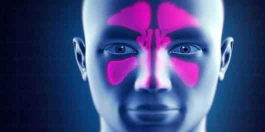 سینوزیت بیماری در پی التهاب سینوسها