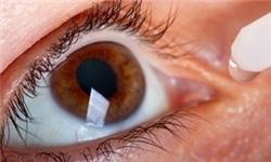 کدام روش جراحی لیزری برای رفع عیوب انکساری مناسب است؟