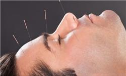 سؤالات خود را با متخصص «طب سوزنی» در میان بگذارید