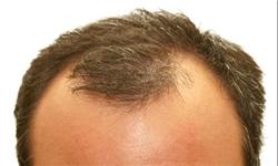 ریزش مجدد موی کاشته شده با اختلالات تیروئیدی/ کمخونی و تغذیه نامناسب در ریزش مو نقش مهمی دارند