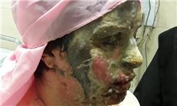 کمپینی برای تسکین دردهای «معصومه»