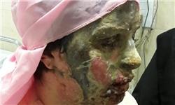 آخرین جزئیات درمان «معصومه» قربانی اسیدپاشی تبریز+فیلم
