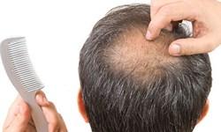 علل «ریزش مو» چیست؟