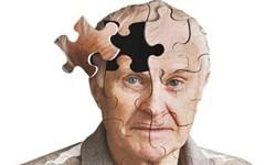 مقابله با آلزایمر از طریق مهار پالسهای رگهای خونی