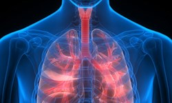 تشخیص سرطان ریه تنها با یک آزمایش خون ساده امکانپذیر میشود