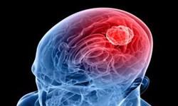 آنچه در مورد علائم و درمان تومورهای مغزی باید بدانید