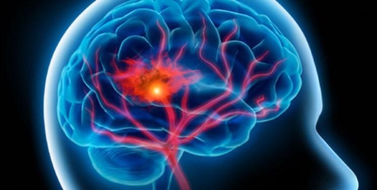 هشدار دانشمندان نسبت به سکته مغزی بیماران کرونا
