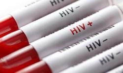 تاکنون ۱۶۹ بیمار مبتلا به «HIV» در استان ایلام شناسایی شده است
