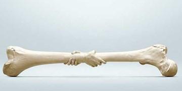 افزایش 70 درصدی شکستگی استخوان در کودکان