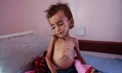 سازمانملل: 400 هزار کودک یمنی در خطر مرگ به دلیل سوء تغذیه هستند