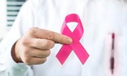 پروتئین مبهم که در پیشرفت سرطان سینه نقش دارد