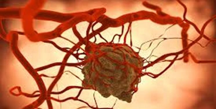 تأخیر در تشخیص سرطان دلیل مرگ زنان