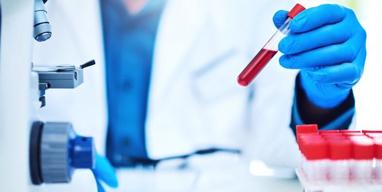 شناسایی آسیب مغزی کودکان تنها با یک آزمایش