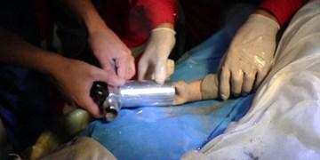 گیرکردن دلخراش دست کودک 18 ماهه بستانآبادی در چرخ گوشت