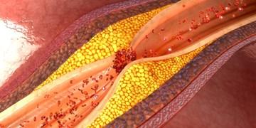 کشف پروتئینی که جلوی حملات قلبی را می گیرد
