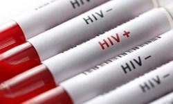 روایت فارس از وضعیت بیماری ایدز در کردستان/ علتها و راهکارهای کاهش شیوع HIV