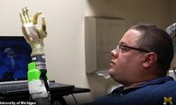 بازوی بیونیکی که مانند دست انسان در حال حرکت است+فیلم و تصاویر