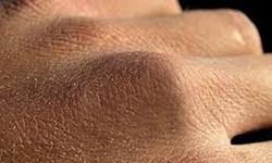 چگونه از پوست خود در روزهای کرونایی مراقبت کنیم؟