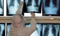 بهبودی ۸۰ بیمار مبتلا به کرونا در بوشهر / تأیید ابتلای ۲ مورد جدید