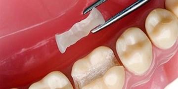 رزینهای دندانی ضدباکتری ساخته شد