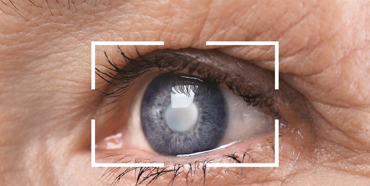 یافته جدید محققان رویان و دانشگاه درسدن آلمان/ کروکتین زعفران بیماری لکه زرد چشم را متوقف می کند