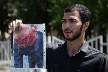 اثار ضرب و جرح به جامانده بر روی صورت یکی از شاکیان زورگیری در محله فلاح