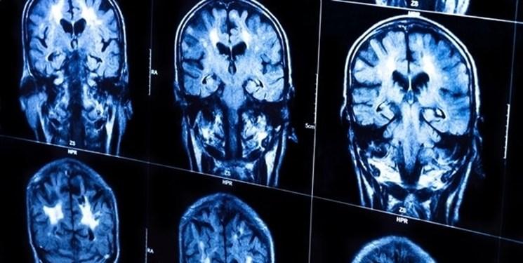 دانشمندان ایرانی راهی برای تسریع ارتباط بین بخش های مختلف مغز یافتند
