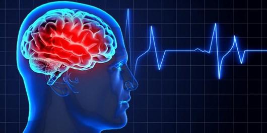 تحقیق جدید: آسیاییها در معرض سکته مغزی ناشی از کرونا هستند