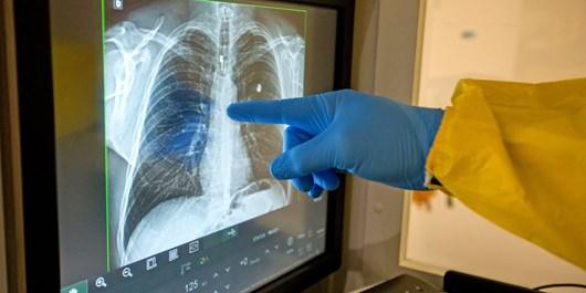تامین اجتماعی مطالبات را پرداخت کند، رادیولوژیستها قرارداد ببندند