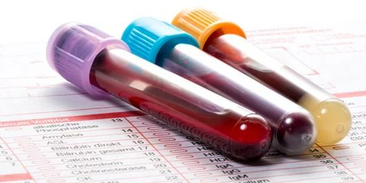 نخستین آزمایش خون برای تشخیص آلزایمر به فروش میرسد