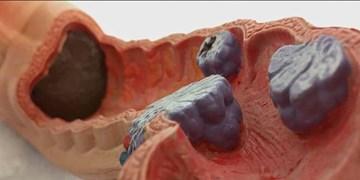 محققان پژوهشگاه رویان سرکوبکننده و مهارکننده تومورهای سرطان روده بزرگ را معرفی کردند