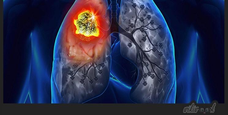 ریه بیماران مبتلا به کرونا پس از بهبودی از بین میرود؟