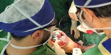 انجام نخستین عمل جراحی تعویض مفصل زانو در مراغه+ عکس