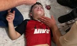 مصدوم شدن دهها فلسطینی بر اثر استنشاق گاز اشکآور نظامیان صهیونیست