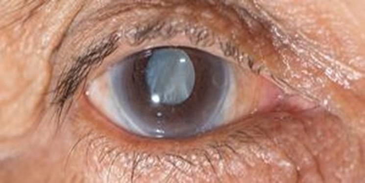 بلایی که دیابت بر «چشم» وارد می کند
