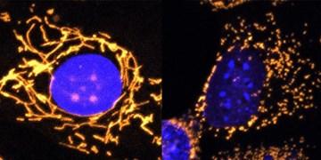 مقابله با کاهش بینایی با ژن درمانی