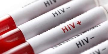 شناسایی ۲۵ درصد بیماران مبتلا به ایدز در کهگیلویه و بویراحمد/اقدامات مراقبتی از بیماران HIV در پاندمی کووید ۱۹