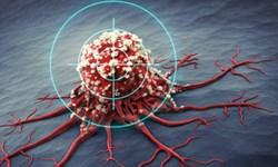 توضیحات مرکز تحقیقات سرطان درباره بی اثر بودن شیمی درمانی بیماران سرطانی