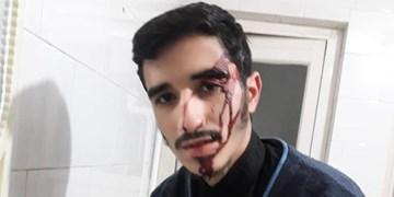 ضرب و شتم طلبه بسیجی در تهران | سلیمانی: ضارب بدون هیچ دلیلی به من حمله کرد
