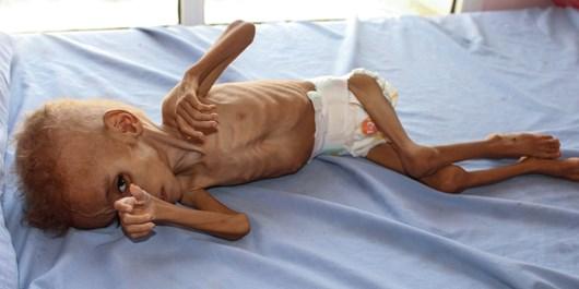 یمن،خواستار جرمانگاری جنایتهای سعودی شد