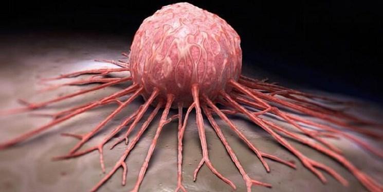 ارائه جدیدترین روشهای درمان سرطان