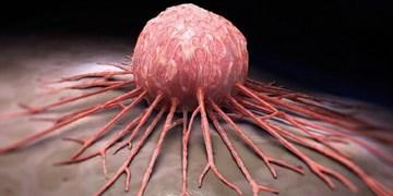این عادتهای روزمره سرطانزا را ترک کنید