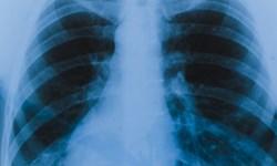تکنیکهایی برای تقویت و افزایش حجم ریهها