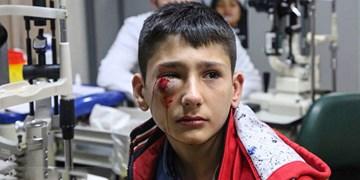 آسیبهای چشمی چهارشنبهسوری غیرقابل بازگشت هستند/ تا حد امکان از خانه بیرون نیایید