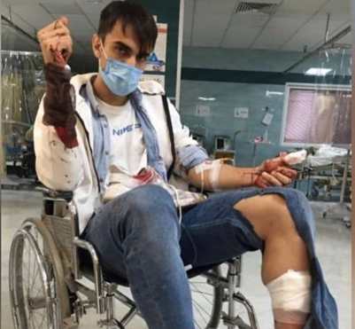 حمله خونین سارقان به بازیکن پدیده +عکس
